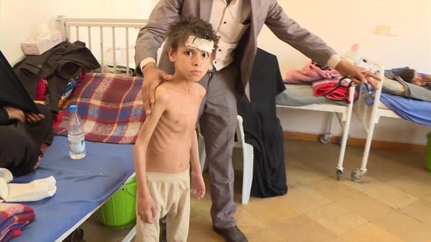 yemen-child-3.jpg