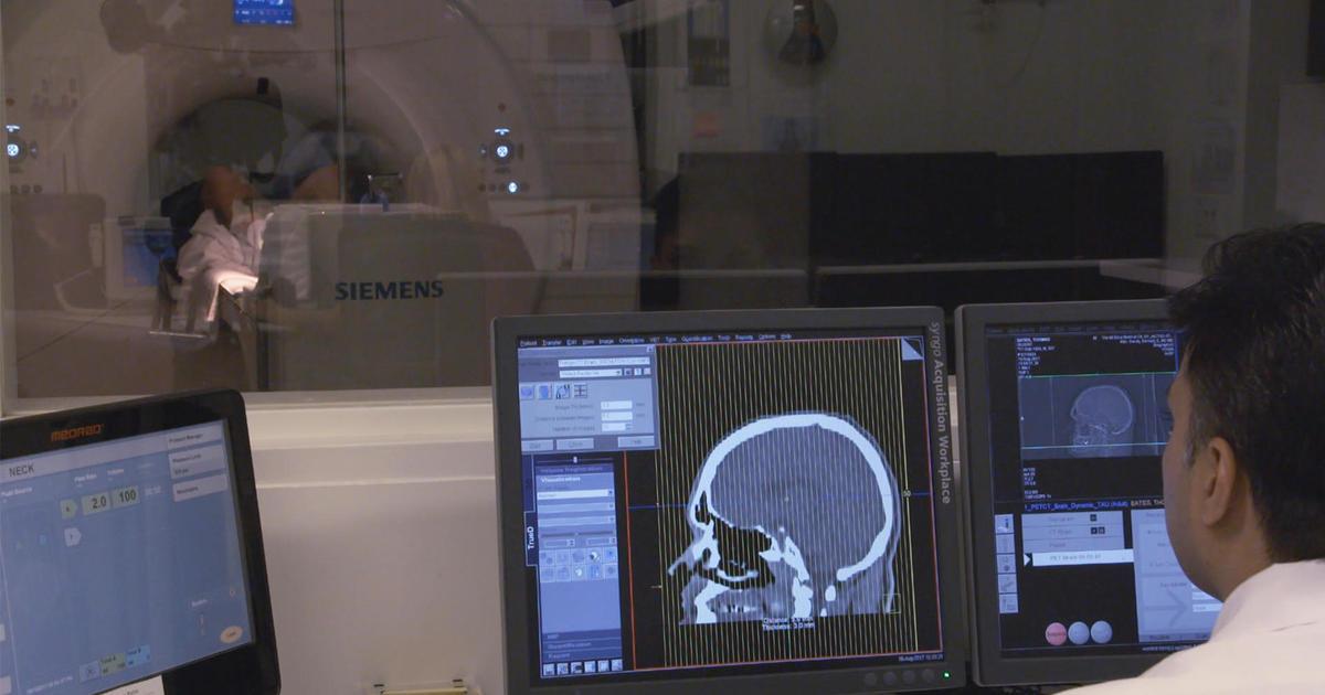 Scientists seek veterans to help treat CTE