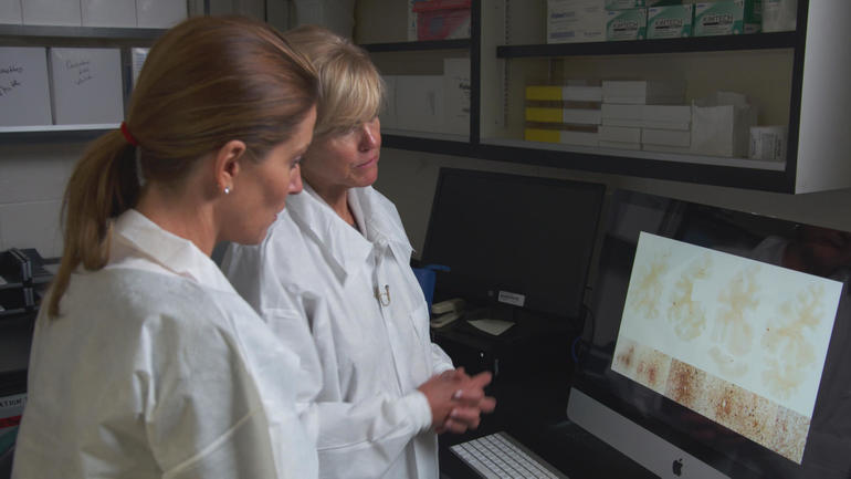 Neuropathologist Dr. Ann Mc Kee shows Sharyn Alfonsi brain scans indicating the presence of CTE               CBS News