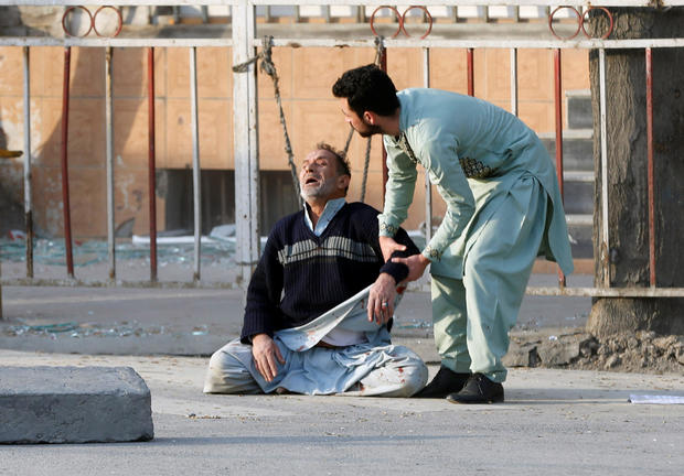 Man reacts after hearing his son was killed during a car bomb attack in Kabul