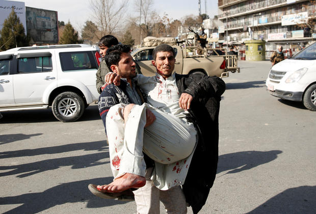 Injured man is carried after a blast in Kabul