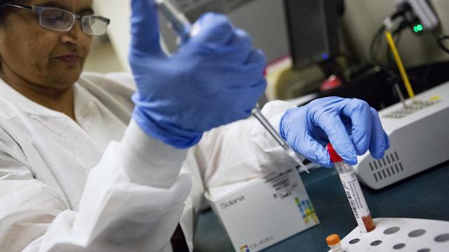 Flu season - influenza lab test