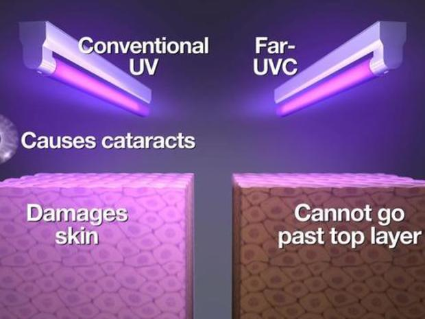 Fighting the flu with ultraviolet light