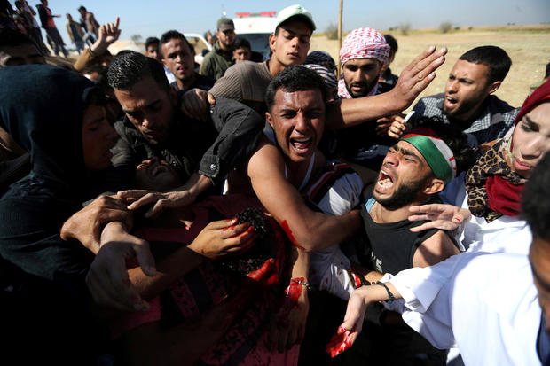 People react as they evacuate Palestinian deaf Tahreer Abu Sabala, 17, who was shot and wounded in the head during clashes with Israeli troops, at Israel-Gaza border, in the southern Gaza Strip