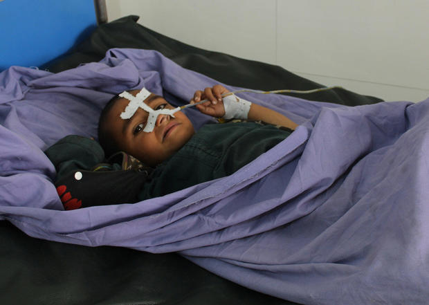 An Afghan child receives treatment at a hospital after MondayÕs airstrike in Kunduz province, Afghanistan