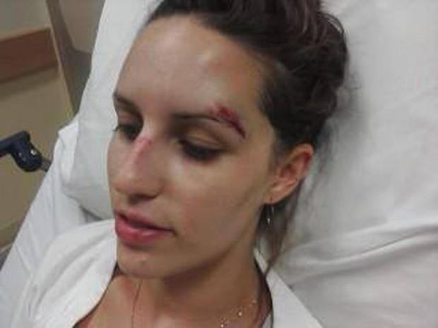ncis-briana-injury.jpg