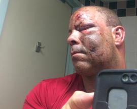 post-accident-selfie-web.jpg