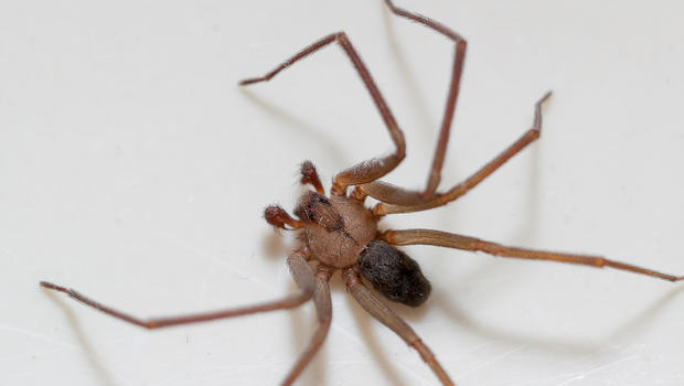 woman rushed to er with brown recluse spider bites then finds