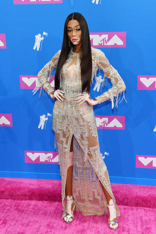 Winnie Harlow Mtv Vmas 2018 Photos From The Red Carpet At Mtvs