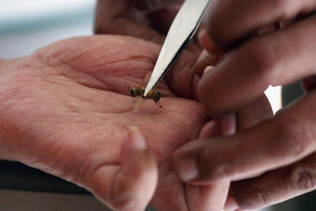 Jakarta Bee Center Uses Bee Stings To Treat Disease
