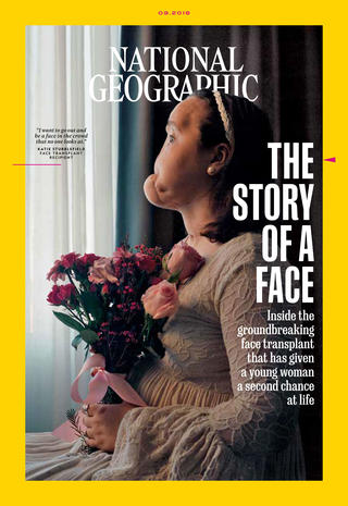 The facial first transplant world authoritative