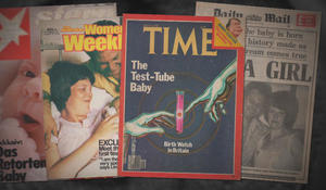 Test tube baby Louise Brown and the birth of IVF