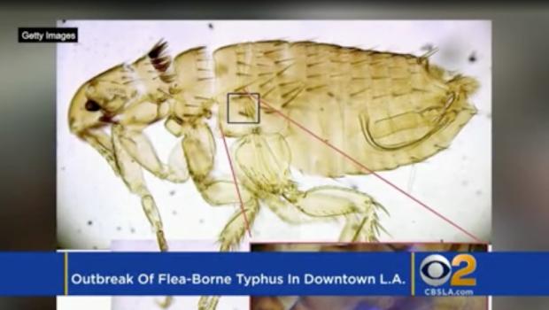 Flea-borne typhus outbreak in Pasadena