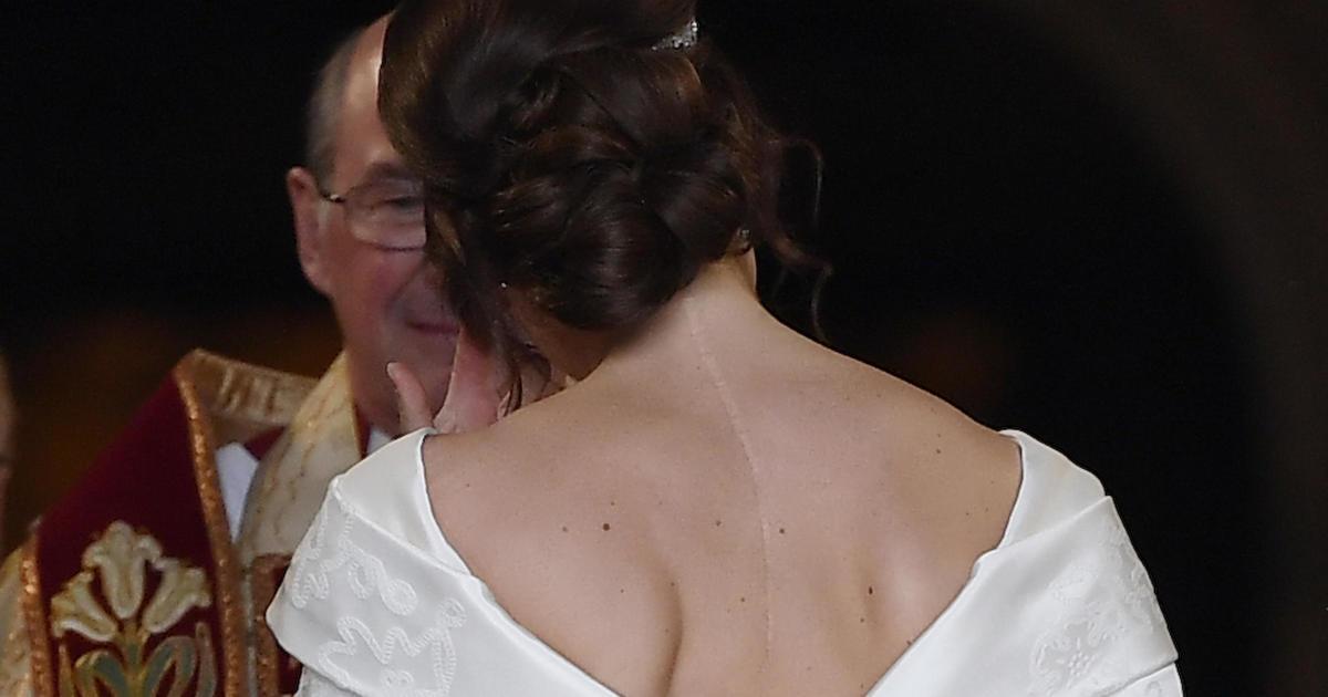 Princess Eugenie's wedding dress was specifically designed to show her scar