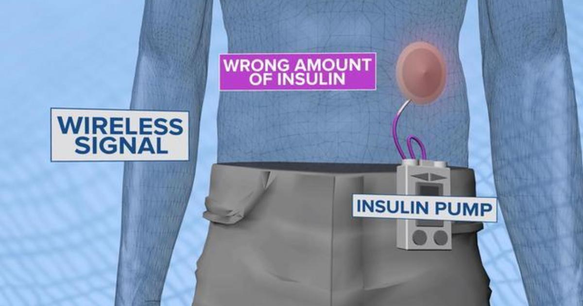 How medical devices like pacemakers, insulin pumps can be hacked
