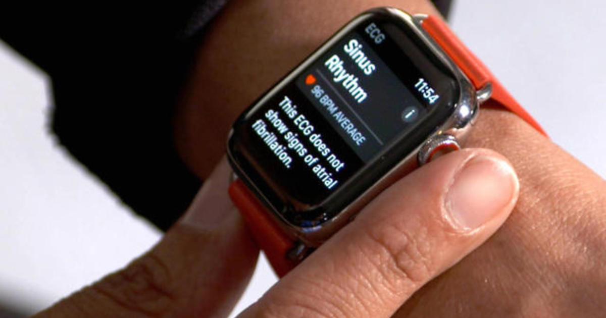 Apple Watch rolling out electrocardiograms for heart health