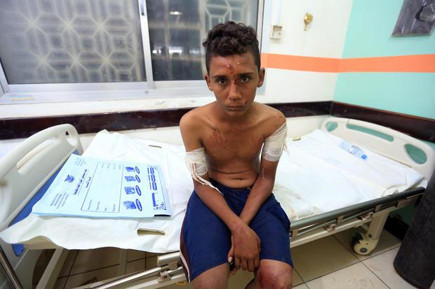 A boy wounded by rocket shrapnel looks on as he sits on a hospital bed in Hodeidah, Yemen, Nov. 30, 2018.