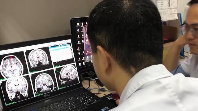 0508-cbsn-brainimplants-1845769-640x360.jpg