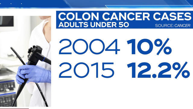0722-cbsn-colonccaner-1896262-640x360.jpg