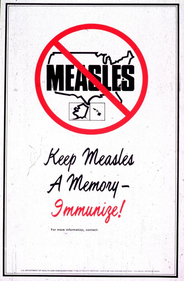 measles_big-moment