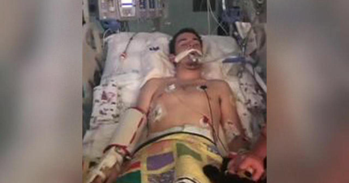 Teen spent 10 days on a ventilator after his lungs failed. Doctors think vaping is to blame.