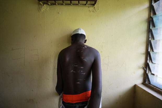 A 14 year-old-boy, one of hundreds of men and boys rescued by police from an institution purporting to be an Islamic school, reveals scars on his back at a transit camp set up to take care of the released captives in Kaduna