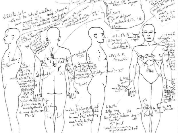pilmar-autopsy2.jpg
