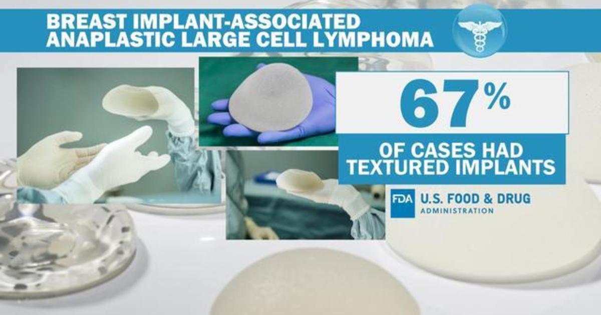 "FDA proposes ""black-box warning"" for breast implants thumbnail"