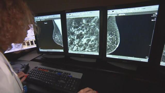 a29-lapook-breast-cancer-drug-121119en-frame-2225.jpg