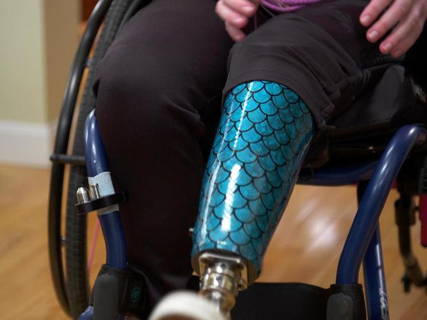 morgan-stickney-mermaid-prosthetic-promo.jpg