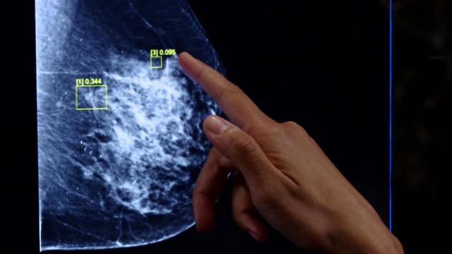 0217-ctm-morobreastcancer-yuccas-2028843-640x360.jpg