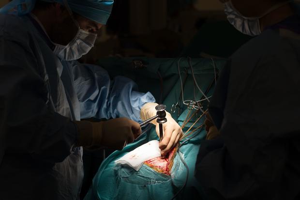 Craniotomy cost