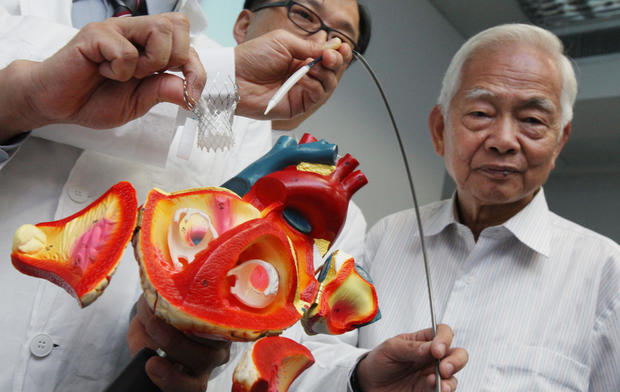 Transcatheter aortic valve replacement cost