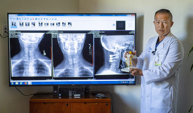spinal cord surgery cost