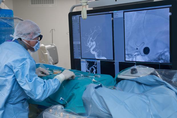 brain aneurysm surgery cost