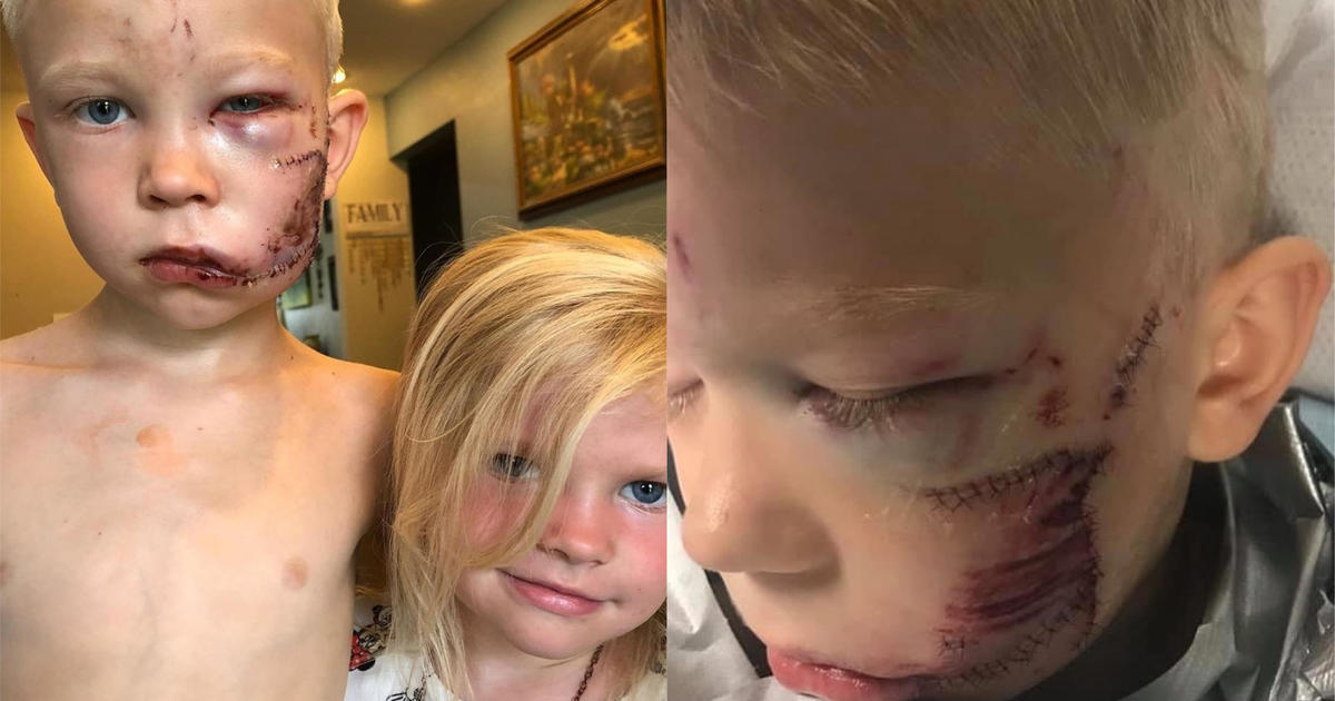 Celebrities hail 6-year-old as a hero after aunt says he saved his sister from a dog attack