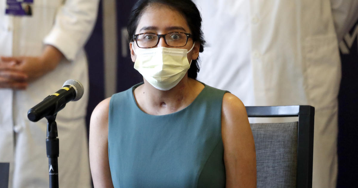 Young coronavirus survivor says she couldn't recognize her body after double lung transplant – CBS News