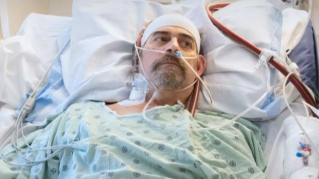cbsn-fusion-covid-19-patient-saved-by-rare-double-lung-transplant-thumbnail-540408-640x360.jpg