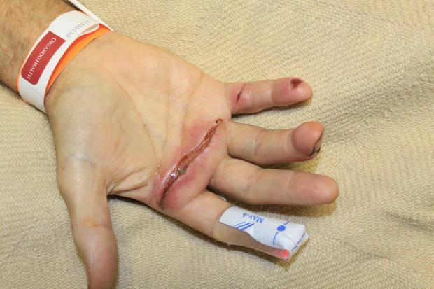 Jim Martin's injured hand