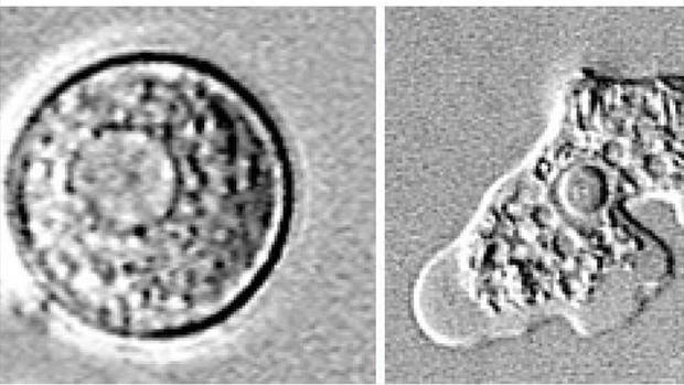 0821-health-brain-eating-amoeba-1-435985-640x360.jpg