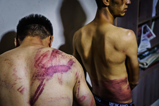AFGHAN JOURNALIST TORTURED AND BEATEN BY TALIBAN